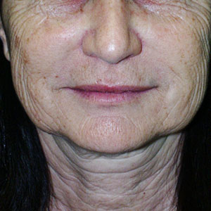 Laser Resurfacing Before & After Patient #3942