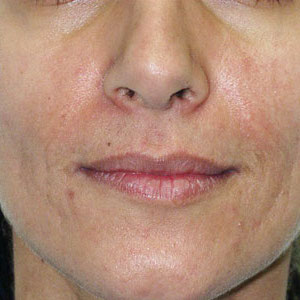 Laser Resurfacing Before & After Patient #3947