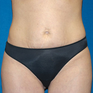 Liposuction Before & After Patient #3964